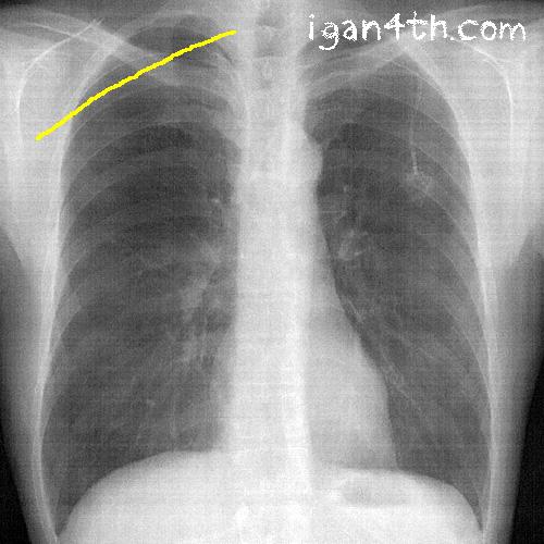 2017年4月 軽度の気胸にまで回復してきた肺のレントゲン