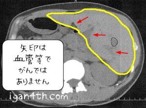 転移性肝がんCT画像2017年2月