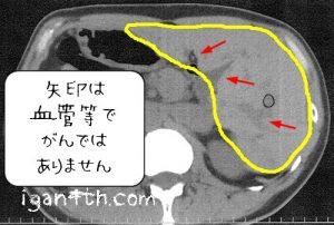 転移性肝がんCT画像2017年5月