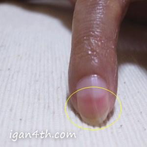末梢神経障害(指先の痛み、炎症)