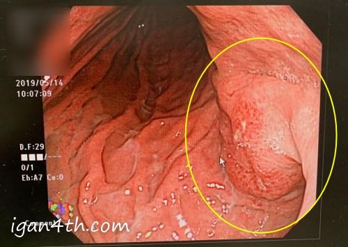 スキルス胃がん内視鏡・胃カメラの画像2019/05