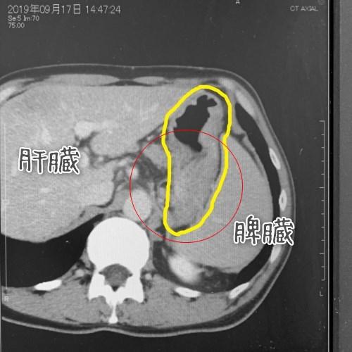 スキルス胃がんCT画像2019年9月